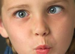 Косоокість у дітей
