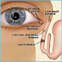 Масаж слізного каналу при дакриоцистите